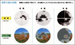 視野検査.jpeg